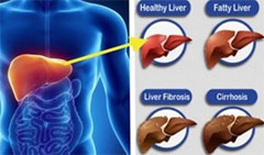 LCP(Liver Clean Program)について